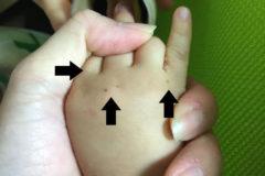 子どもの手足口病の経過レポート